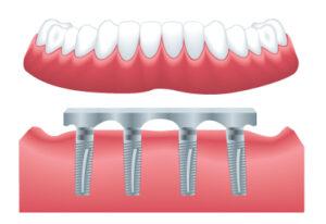 implantDenture