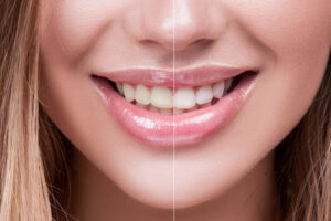 teeth-whitening_smile